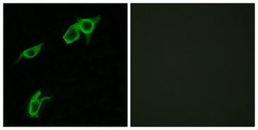 Immunofluorescence analysis of LOVO cells, using GPR75 Antibody. The picture on the right is blocked with the synthesized peptide.