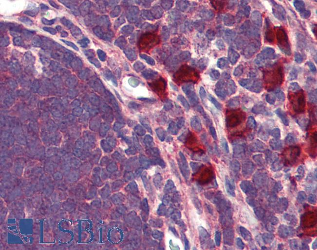 Anti-GPR88 antibody IHC of human thymus. Immunohistochemistry of formalin-fixed, paraffin-embedded tissue after heat-induced antigen retrieval.