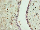 Immunohistochemistry of paraffin-embedded human breast cancer using antibody at 1:100 dilution.