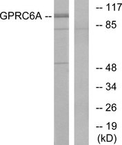 Western blot analysis of lysates from Jurkat cells, using GPRC6A Antibody. The lane on the right is blocked with the synthesized peptide.