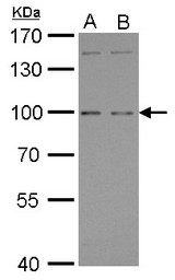 GPRC6A antibody [C3], C-term detects GPRC6A protein by Western blot analysis. A. 30 ug Raji whole cell lysate/extract. B. 30 ug K562 whole cell lysate/extract. 7.5 % SDS-PAGE. GPRC6A antibody [C3], C-term dilution:1:500