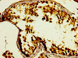 Immunohistochemistry image at a dilution of 1:400 and staining in paraffin-embedded human testis tissue performed on a Leica BondTM system. After dewaxing and hydration, antigen retrieval was mediated by high pressure in a citrate buffer (pH 6.0) . Section was blocked with 10% normal goat serum 30min at RT. Then primary antibody (1% BSA) was incubated at 4 °C overnight. The primary is detected by a biotinylated secondary antibody and visualized using an HRP conjugated SP system.
