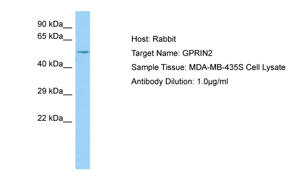 GPRIN2 / GRIN2 Antibody -  This image was taken for the unconjugated form of this product. Other forms have not been tested.