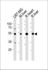 GPT Antibody (N-term R133) western blot of U87-MG cell line , mouse liver ,and rat heart and liver tissue lysates (35 ug/lane). The GPT antibody detected the GPT protein (arrow).