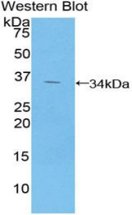 GPT / Alanine Transaminase Antibody - Western blot of recombinant GPT / Alanine Transaminase.  This image was taken for the unconjugated form of this product. Other forms have not been tested.