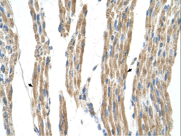 GPT / Alanine Transaminase Antibody - GPT / ALT1 antibody GPT(glutamic-pyruvate transaminase (alanine aminotransferase)) Antibody was used in IHC to stain formalin-fixed, paraffin-embedded human muscle.  This image was taken for the unconjugated form of this product. Other forms have not been tested.