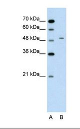 GPT / Alanine Transaminase Antibody - Lane A: Marker. Lane B: Jurkat cell lysate. Antibody concentration: 2.5 ug/ml. Gel concentration: 12%.  This image was taken for the unconjugated form of this product. Other forms have not been tested.