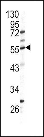Western blot of GPT antibody (N-term P101) in HL60 cell line lysates (35 ug/lane). GPT (arrow) was detected using the purified antibody.