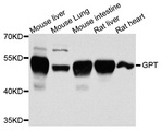 Western blot blot of extracts of various cells, using GPT antibody.