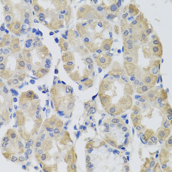 GPT / Alanine Transaminase Antibody - Immunohistochemistry of paraffin-embedded human gastric using GPT antibody at dilution of 1:100 (x40 lens).