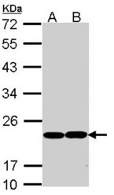 Sample (30 ug of whole cell lysate). A: Molt-4. B: Raji. 12% SDS PAGE. GPX1 antibody diluted at 1:1000.