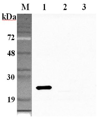 Western blot analysis using anti-GPX1 (human), pAb at 1:2000 dilution. 1: Human GPX1 (His-tagged). 2: Human GPX2 (His-tagged). 3: Human GPX3 (His-tagged).