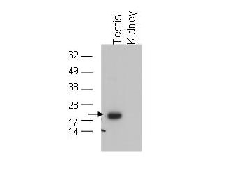 Anti-GPx4 Antibody - Western Blot. Western blot of affinity purified anti-GPx4 to detect GPx4 in testis extract (arrow). tissue extract (40 ug) was electrophoresed and transferred to nitrocellulose. The membrane was probed with the primary antibody at a 1:1000 dilution. Personal Communication, Dolph Hatfield, CCR-NCI, Bethesda, MD.