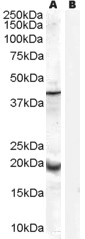 Antibody (0.3 ug/ml) staining of Human Prostate lysate (35 ug protein in RIPA buffer) with (B) and without (A) blocking with the immunizing peptide. Primary incubation was 1 hour. Detected by chemiluminescence.