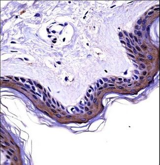 GRB4 / NCK2 Antibody - NCK2 Antibody immunohistochemistry of formalin-fixed and paraffin-embedded human skin tissue followed by peroxidase-conjugated secondary antibody and DAB staining.
