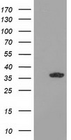 GRHPR / Glyoxylate Reductase Antibody - HEK293T cells were transfected with the pCMV6-ENTRY control (Left lane) or pCMV6-ENTRY GRHPR (Right lane) cDNA for 48 hrs and lysed. Equivalent amounts of cell lysates (5 ug per lane) were separated by SDS-PAGE and immunoblotted with anti-GRHPR.