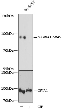 GRIA1 / GLUR1 Antibody - Western blot analysis of extracts of SH-SY5Y cells, using Phospho-GRIA1-S845 antibody at 1:1000 dilution or GRIA1 antibody. SH-SY5Y cells were treated by CIP(20uL/400ul) at 37℃ for 1 hour. The secondary antibody used was an HRP Goat Anti-Rabbit IgG (H+L) at 1:10000 dilution. Lysates were loaded 25ug per lane and 3% nonfat dry milk in TBST was used for blocking. Blocking buffer: 3% BSA.An ECL Kit was used for detection and the exposure time was 15s.