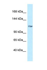 GRIK5 antibody Western blot of Mouse Pancreas lysate. Antibody concentration 1 ug/ml.  This image was taken for the unconjugated form of this product. Other forms have not been tested.