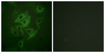 GRIN2A+GRIN2B Antibody - Immunofluorescence analysis of HUVEC cells, using NMDAR2A/B Antibody. The picture on the right is blocked with the synthesized peptide.