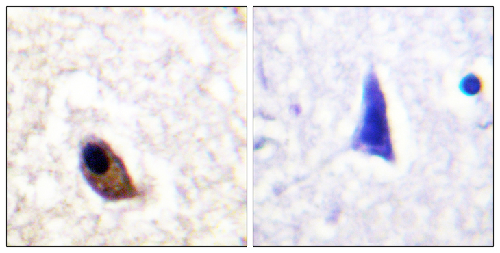 GRIN2A+GRIN2B Antibody - Immunohistochemistry analysis of paraffin-embedded human brain, using NMDAR2A/B (Phospho-Tyr1246/1252) Antibody. The picture on the right is blocked with the phospho peptide.