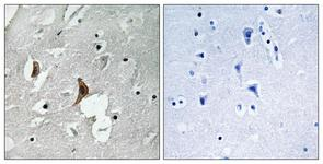IHC of paraffin-embedded human brain, using NMDAR2B (Phospho-Tyr1336) Antibody. The sample on the right was incubated with synthetic peptide.