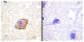 IHC of paraffin-embedded human brain, using NMDAR2B (Phospho-Tyr1474) Antibody. The sample on the right was incubated with synthetic peptide.