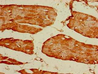 Immunohistochemistry of paraffin-embedded human skeletal muscle tissue using GRIN2C Antibody at dilution of 1:100