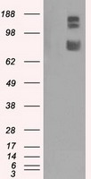 HEK293T cells were transfected with the pCMV6-ENTRY control (Left lane) or pCMV6-ENTRY GRIPAP1 (Right lane) cDNA for 48 hrs and lysed. Equivalent amounts of cell lysates (5 ug per lane) were separated by SDS-PAGE and immunoblotted with anti-GRIPAP1.