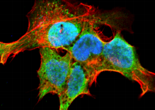 GRK / GPCR Kinase Antibody - Detection of GRK in neuroblastoma cell line SK-N-BE with GRK (pan) Monoclonal Antibody at 10ug/ml: DAPI (blue) nuclear stain, Texas Red F actin stain, ATTO 488 (green) GRK stain.