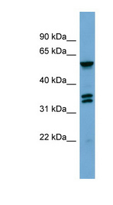 GRK4 antibody Western blot of MCF7 cell lysate. This image was taken for the unconjugated form of this product. Other forms have not been tested.