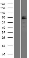 GRK6 Protein - Western validation with an anti-DDK antibody * L: Control HEK293 lysate R: Over-expression lysate