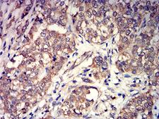 GRM3 / MGLUR3 Antibody - Immunohistochemical analysis of paraffin-embedded bladder cancer tissues using GRM3 mouse mAb with DAB staining.