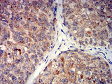 Immunohistochemical analysis of paraffin-embedded bladder cancer tissues using GRM5 mouse mAb with DAB staining.