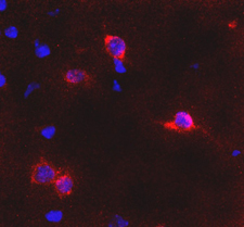 GRM6 / MGLUR6 Antibody - Immunofluorescence detection of GluR6 in trapezoid body in mouse brain (red). DAPI was used to counterstain cell nuclei.  This image was taken for the unconjugated form of this product. Other forms have not been tested.