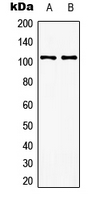 GRM8 / MGLUR8 Antibody - Western blot analysis of mGLUR8 expression in EOC20 (A); rat brain (B) whole cell lysates.