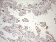 GRN / Granulin Antibody - Immunohistochemical staining of paraffin-embedded Adenocarcinoma of Human ovary tissue using anti-GRN mouse monoclonal antibody. (Heat-induced epitope retrieval by 1mM EDTA in 10mM Tris buffer. (pH8.5) at 120°C for 3 min. (1:150)