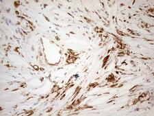 GRN / Granulin Antibody - Immunohistochemical staining of paraffin-embedded Adenocarcinoma of Human breast tissue using anti-GRN mouse monoclonal antibody. (Heat-induced epitope retrieval by 1mM EDTA in 10mM Tris buffer. (pH8.5) at 120°C for 3 min. (1:150)