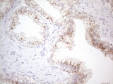 Immunohistochemical staining of paraffin-embedded Carcinoma of Human prostate tissue using anti-GRN mouse monoclonal antibody. (Heat-induced epitope retrieval by 1mM EDTA in 10mM Tris buffer. (pH8.5) at 120°C for 3 min. (1:150)