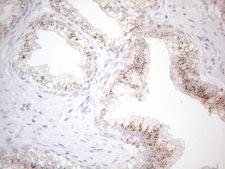 GRN / Granulin Antibody - Immunohistochemical staining of paraffin-embedded Carcinoma of Human prostate tissue using anti-GRN mouse monoclonal antibody. (Heat-induced epitope retrieval by 1mM EDTA in 10mM Tris buffer. (pH8.5) at 120°C for 3 min. (1:150)