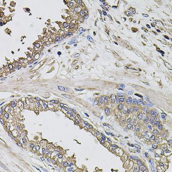 GRN / Granulin Antibody - Immunohistochemistry of paraffin-embedded human prostate using GRN antibody at dilution of 1:100 (40x lens).
