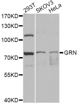 GRN / Granulin Antibody - Western blot analysis of extracts of various cell lines, using GRN antibody at 1:1000 dilution. The secondary antibody used was an HRP Goat Anti-Rabbit IgG (H+L) at 1:10000 dilution. Lysates were loaded 25ug per lane and 3% nonfat dry milk in TBST was used for blocking. An ECL Kit was used for detection and the exposure time was 1s.