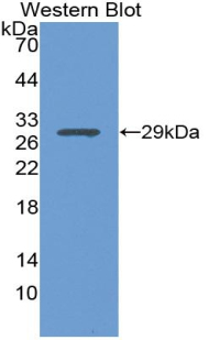 Western blot of recombinant Growth Hormone Receptor / GHR.