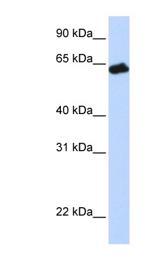 GHR / Growth Hormone Receptor antibody LS-C110871 Western blot of Fetal Muscle lysate.  This image was taken for the unconjugated form of this product. Other forms have not been tested.