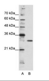 GSCL / GSC2 Antibody - A: Marker, B: HepG2 Cell Lysate.  This image was taken for the unconjugated form of this product. Other forms have not been tested.