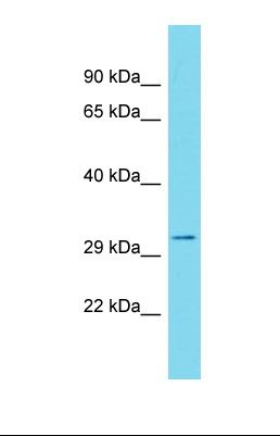 Western blot of Human Stomach Tumor. GSG1L antibody dilution 1.0 ug/ml.  This image was taken for the unconjugated form of this product. Other forms have not been tested.