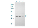 Anti-GSK3A Antibody - Western Blot. Western blot of Affinity Purified anti-GSK3A antibody shows detection of a 52 kD band corresponding to human GSK3A in various human derived 293T cell extracts. Cells were serum starved for 24 h. Lane 1: control, Lane 2: treated with IGF-1 (100 ng/ml) for 20 min, Lane 3: pre-treated with 10 uM LY294002 (selective PI3K inhibitor) and treated with IGF-1 (100 ng/ml) for 20 min. Lane 1 shows some baseline GSK3A reactivity that is intensified upon stimulation (lane2) and diminished when an inhibitor is added (lane 3). Approximately 20 ug of lysate was run on a SDS-PAGE and transferred onto nitrocellulose followed by reaction with a 1:1000 dilution of anti-GSK3A antibody. Signal was detected using standard techniques. Personal communication, Angela Carter, Experimental Therapeutics, Ontario Cancer Inst, Toronto, Canada.