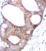 GSK3A / GSK3 Alpha Antibody - Immunohistochemical analysis of paraffin-embedded human breast carcinoma tissue.