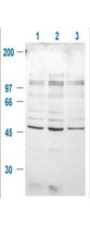 Anti-GSK3B pS9 Antibody - Western Blot. Western blot of Rabbit-anti-GSK3B pS9 antibody at a 1:1000 dilution. All lanes contain human 293T whole cell lysate showing a band at 47 kD. Cells were serum starved for 24 h prior to extraction. Key: Lane 1 Control, Lane 2 treated with IGF-1 (100 ng/ml) for 20, lane 3 pre-treated with 10 uM LY294002 (selective PI3K inhibitor) and treated with IGF-1 (100 ng/ml) for 20. Molecular weight markers confirm a MW of ~49 kD. Use a 1:2000 dilution of HRP Goat-a-Rabbit IgG (LS-C60865) for detection.