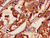 Immunohistochemistry of paraffin-embedded human gastric cancer using GSR Antibody at dilution of 1:100