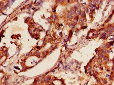 GSR / Glutathione Reductase Antibody - Immunohistochemistry of paraffin-embedded human gastric cancer using GSR Antibody at dilution of 1:100